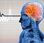 پاورپوینت-(اسلاید)-بررسی-سکته-مغزی