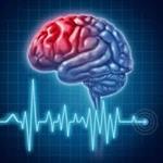 پاورپوینت-سکته-مغزی