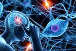 پاورپوینت-اختلالات-سیستم-عصبی