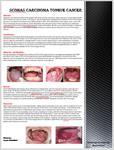 پوستر-poster-presentaton-about-scomas-carcinoma-tongue-cancer