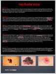پوستر-poster-presentaton-about-melanoma